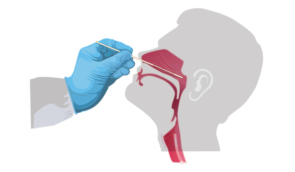 Nasal swab